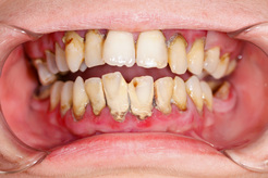Periodontal disease is treated at Clubb Dental, Indooroopilly
