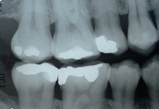 Dental Xrays are taken every 2 years at Clubb Dental