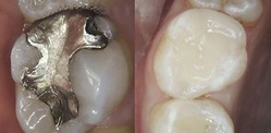Replacing Amalgam Filings give great cosmetic results at Clubb Dental, Indooroopilly, Brisbane