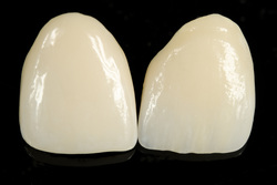 Porcelain Veneers are available at Clubb Dental, Indooroopilly, Brisbane