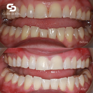 Before and After Teeth Whitening using Zoom! at Clubb Dental