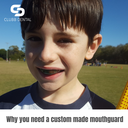 Why you need a custom made mouthguard Clubb Dental