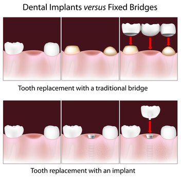 A dental Implant can be a great alternative to a Dental Bridge