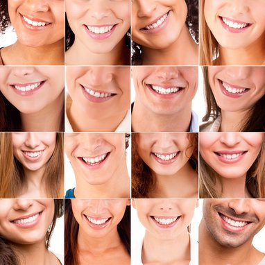 Cosmetic Dentistry available at Clubb Dental, Indooroopilly, Brisbane