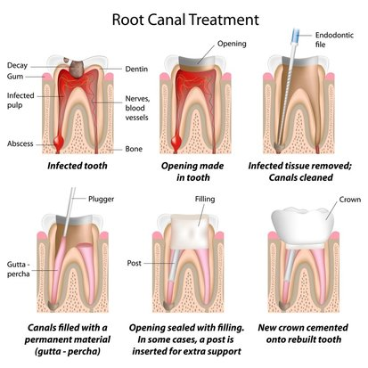 Root Canal Therapy saves teeth with infected or dead pulps.