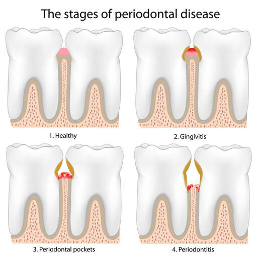 The stages of Periodontal Disease from Gingivitis to Periodontitis